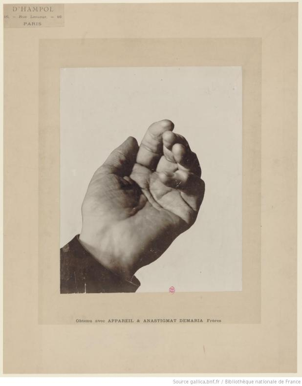 Joachim's Hand BNF